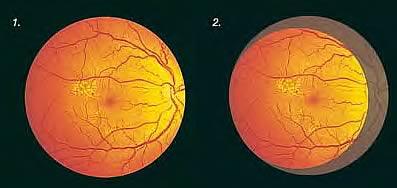 широкоугольный диффузор для офтальмоскопа