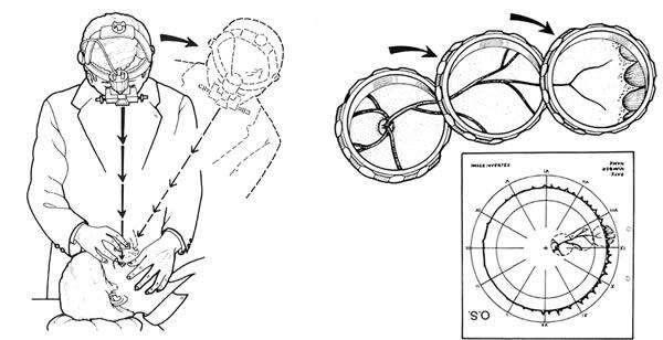 осмотр бинокулярным непрямым офтальмоскопом
