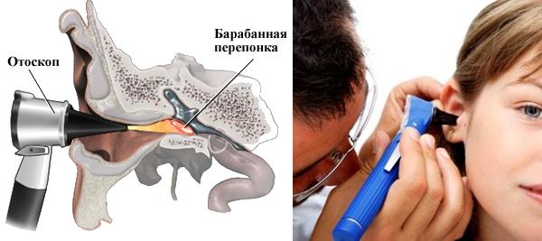 схема отоскопии